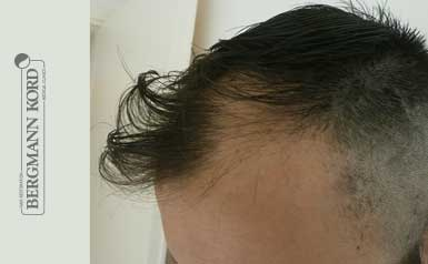 hair-transplantation-bergmann-kord-results-men-43006PG-thumb-001