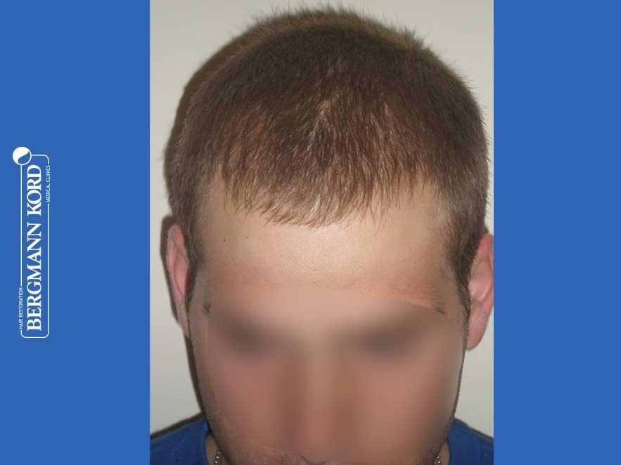 hair-transplantation-bergmann-kord-results-men-43014PG-after-front-001
