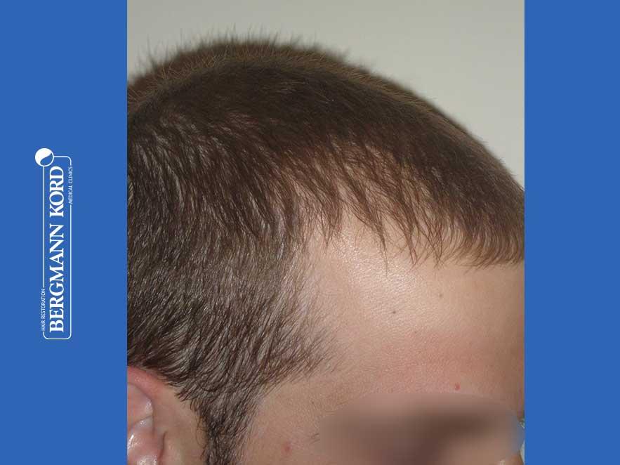hair-transplantation-bergmann-kord-results-men-43014PG-after-right-001