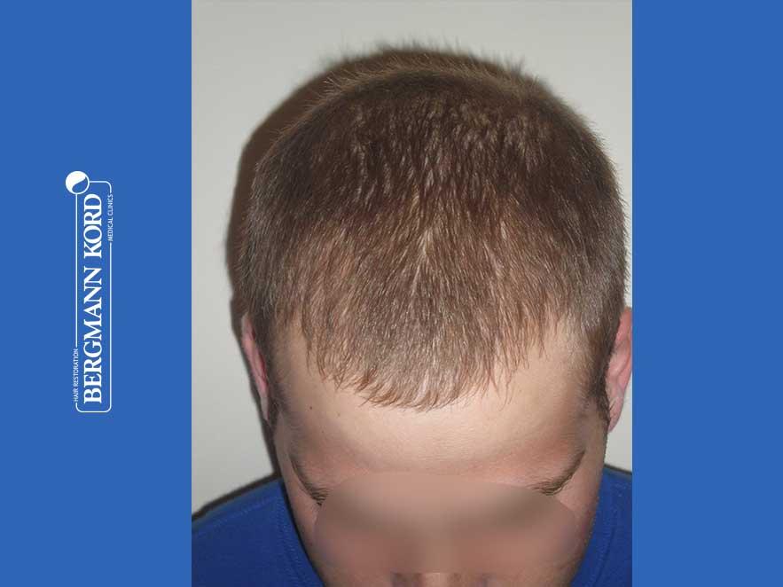 hair-transplantation-bergmann-kord-results-men-43014PG-after-top-001