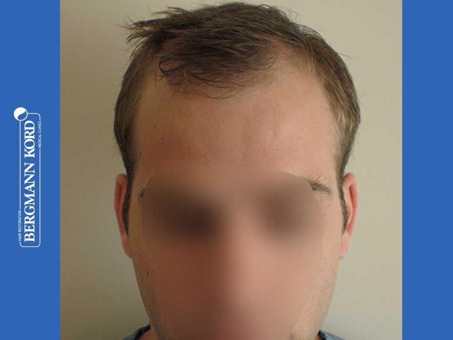 hair-transplantation-bergmann-kord-results-men-43014PG-before-front-001