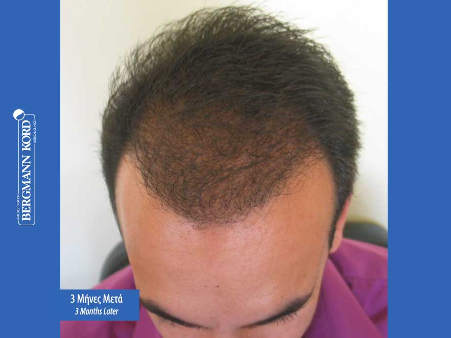 hair-transplantation-bergmann-kord-results-men-44039PG-3months-top-001