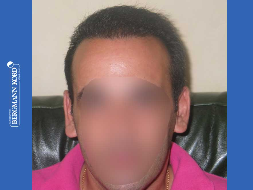 hair-transplantation-bergmann-kord-results-men-44039PG-after-front-001
