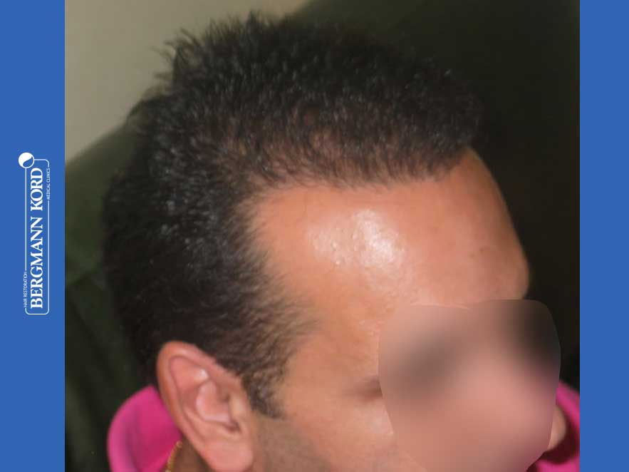 hair-transplantation-bergmann-kord-results-men-44039PG-after-right-001