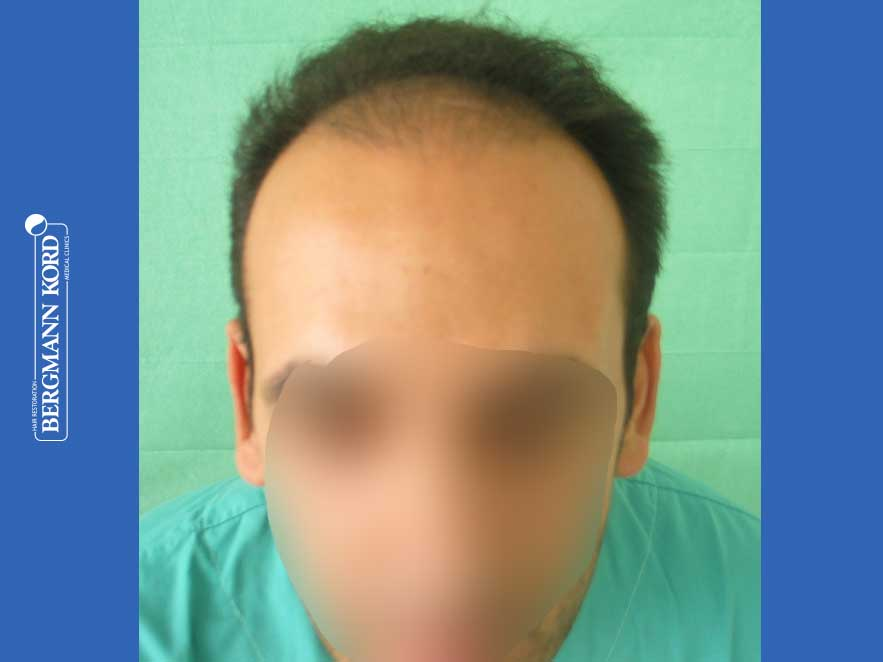 hair-transplantation-bergmann-kord-results-men-44039PG-before-front-001