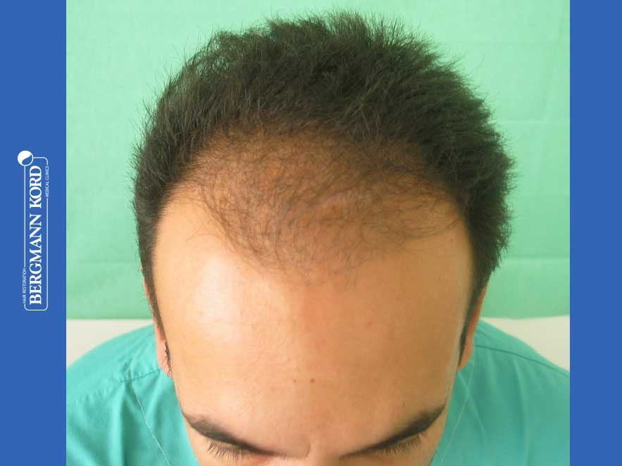hair-transplantation-bergmann-kord-results-men-44039PG-before-top-001