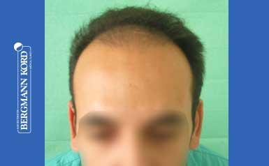 hair-transplantation-bergmann-kord-results-men-44039PG-thumb-001