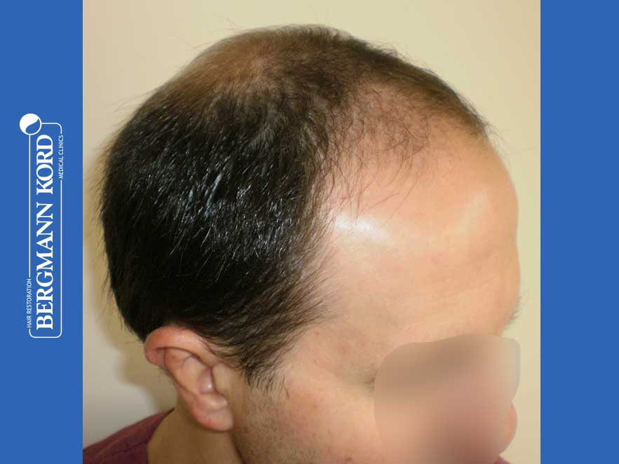 hair-transplantation-bergmann-kord-results-men-44056PG-before-right-001