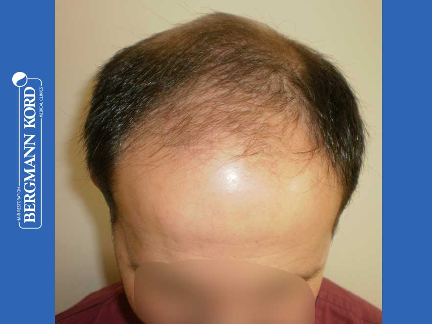hair-transplantation-bergmann-kord-results-men-44056PG-before-top-001