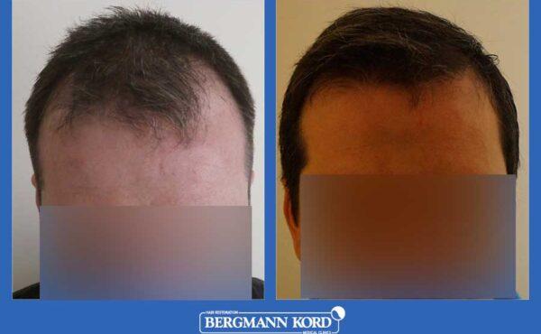hair-transplantation-bergmann-kord-results-men-44257PG-before-after-001