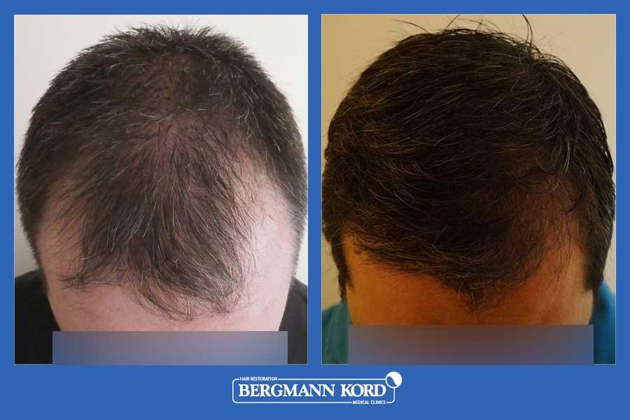 hair-transplantation-bergmann-kord-results-men-44257PG-before-after-002