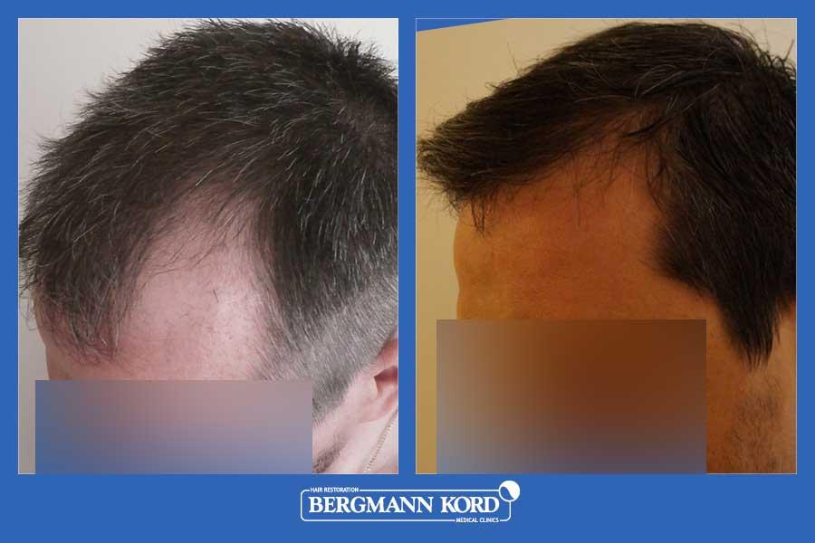 hair-transplantation-bergmann-kord-results-men-44257PG-before-after-003