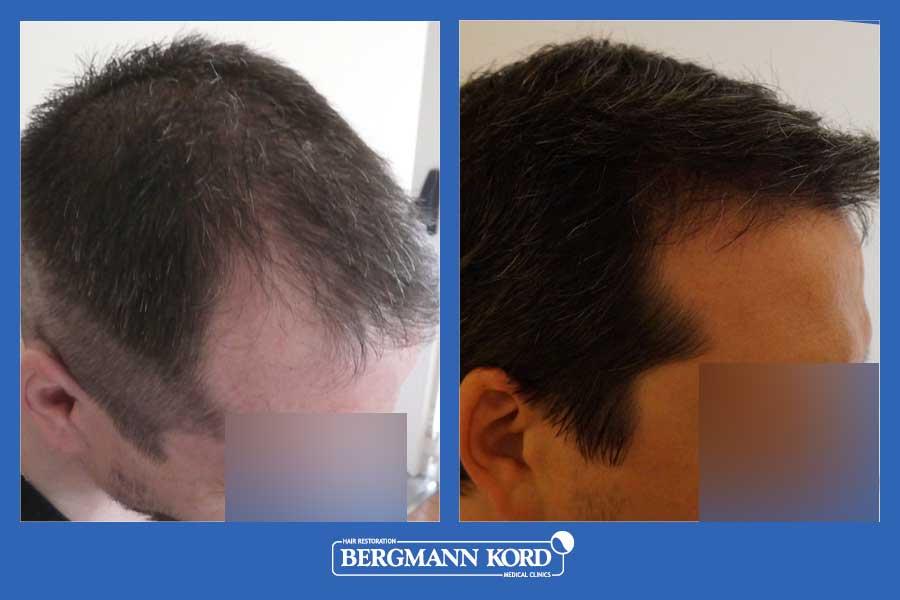 hair-transplantation-bergmann-kord-results-men-44257PG-before-after-004