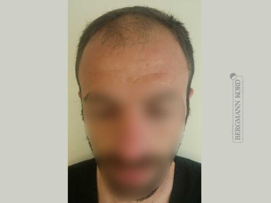 hair-transplantation-bergmann-kord-results-men-45023PG-before-front-001