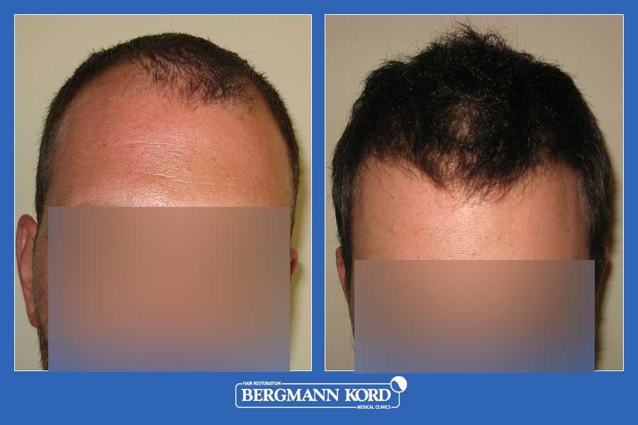 hair-transplantation-bergmann-kord-results-men-45667PG-before-after-001