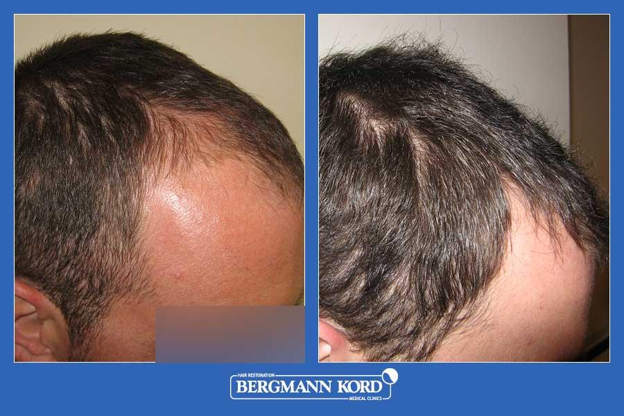 hair-transplantation-bergmann-kord-results-men-45667PG-before-after-002