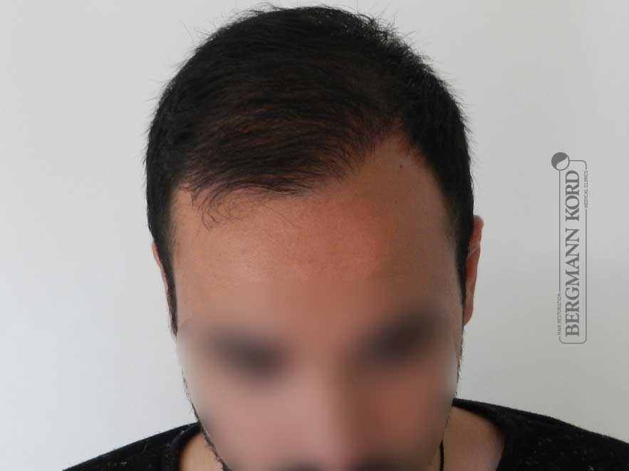 hair-transplantation-bergmann-kord-results-men-46002PG-after-top-001