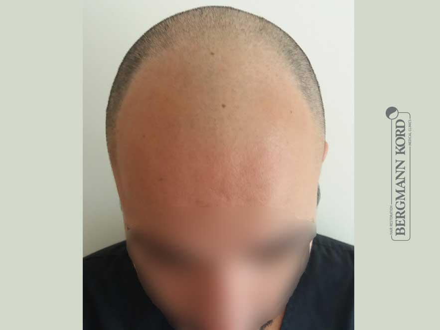 hair-transplantation-bergmann-kord-results-men-46002PG-before-top-001