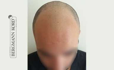 hair-transplantation-bergmann-kord-results-men-46002PG-thumb-001