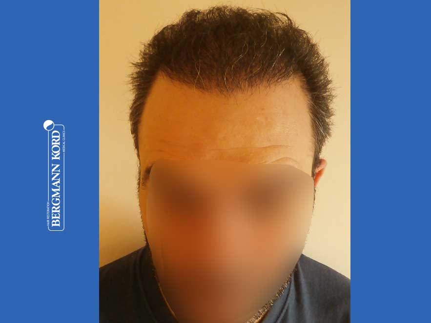 hair-transplantation-bergmann-kord-results-men-48009PG-8months-front-001