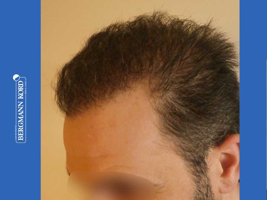 hair-transplantation-bergmann-kord-results-men-48009PG-after-left-001