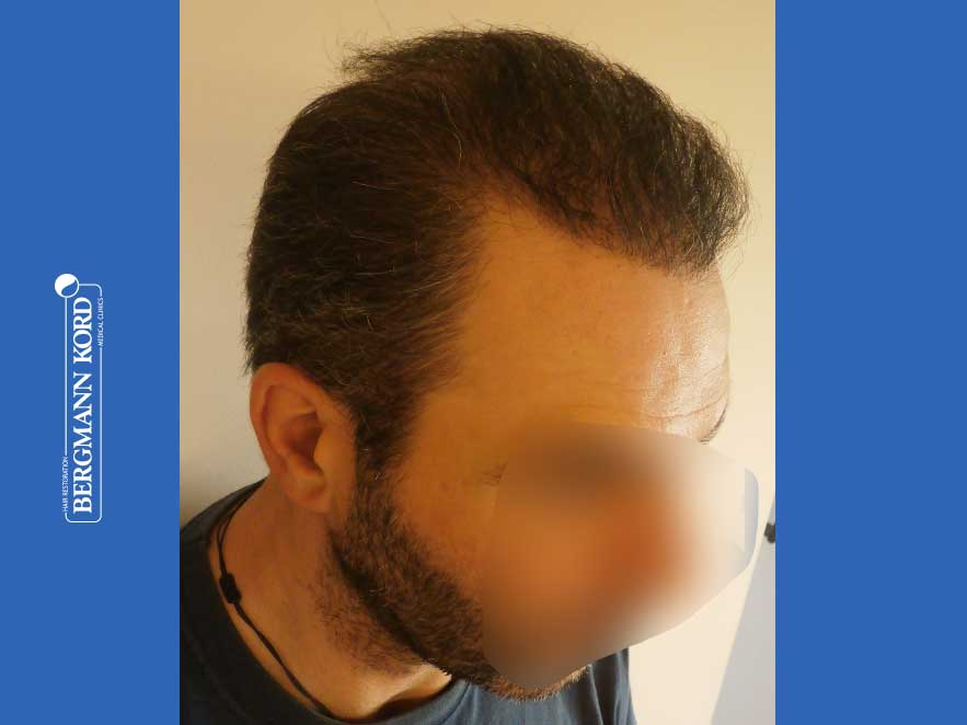 hair-transplantation-bergmann-kord-results-men-48009PG-after-right-001