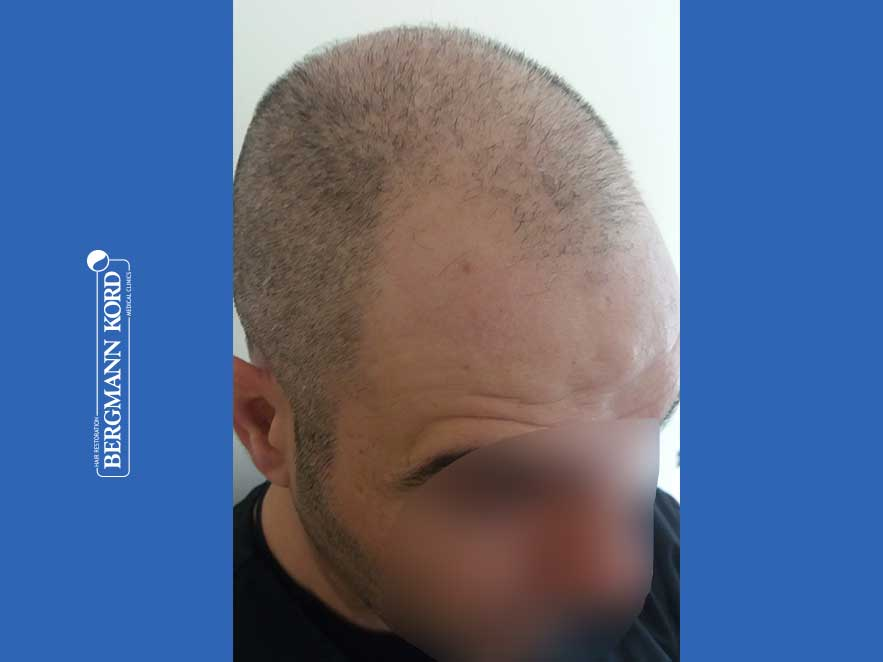 hair-transplantation-bergmann-kord-results-men-48009PG-before-right-001