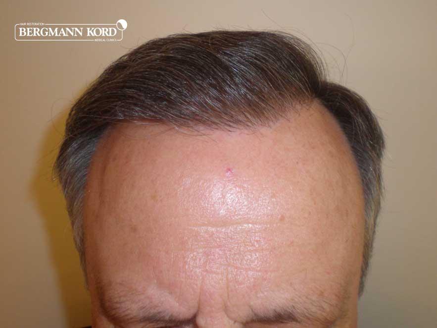 hair-transplantation-bergmann-kord-results-men-49021-after-001