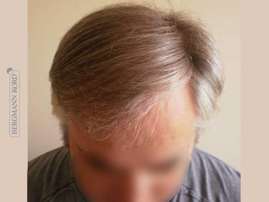 hair-transplantation-bergmann-kord-results-men-49028PG-after-top-001