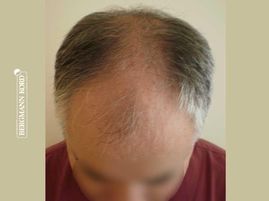 hair-transplantation-bergmann-kord-results-men-49028PG-before-top-001
