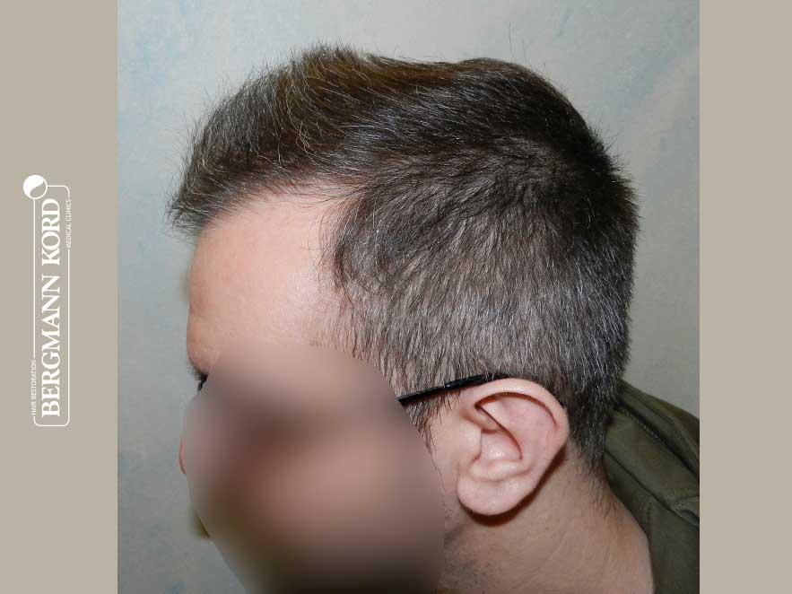hair-transplantation-bergmann-kord-results-men-49048PG-after-left-001