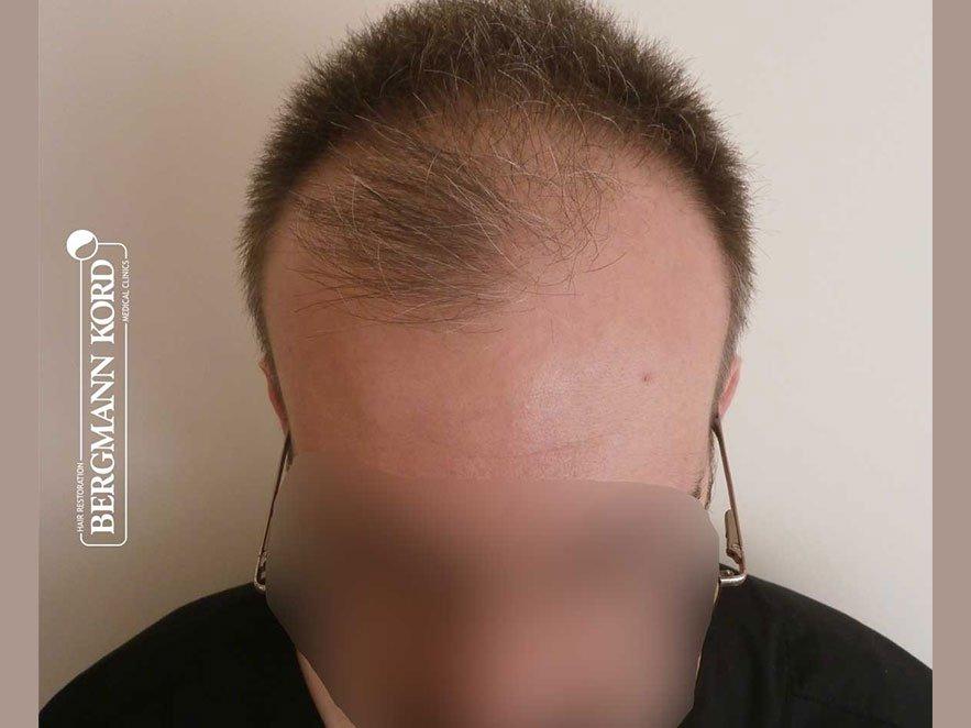hair-transplantation-bergmann-kord-results-men-49048PG-before-front-001
