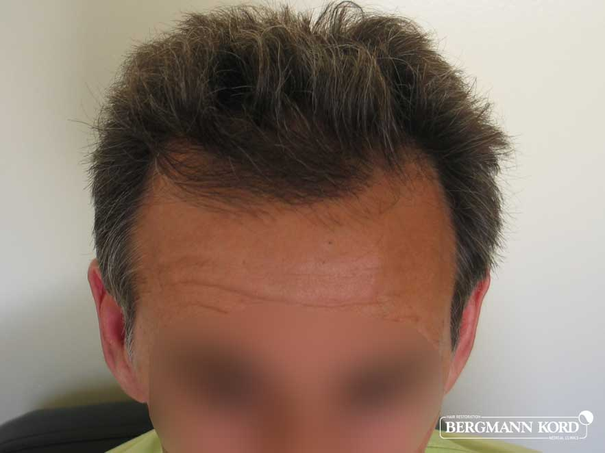 hair-transplantation-bergmann-kord-results-men-50007PG-after-top-001
