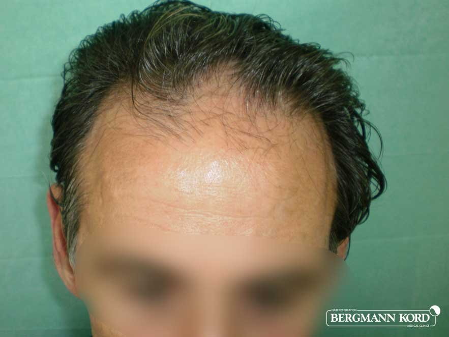 hair-transplantation-bergmann-kord-results-men-50007PG-before-top-001
