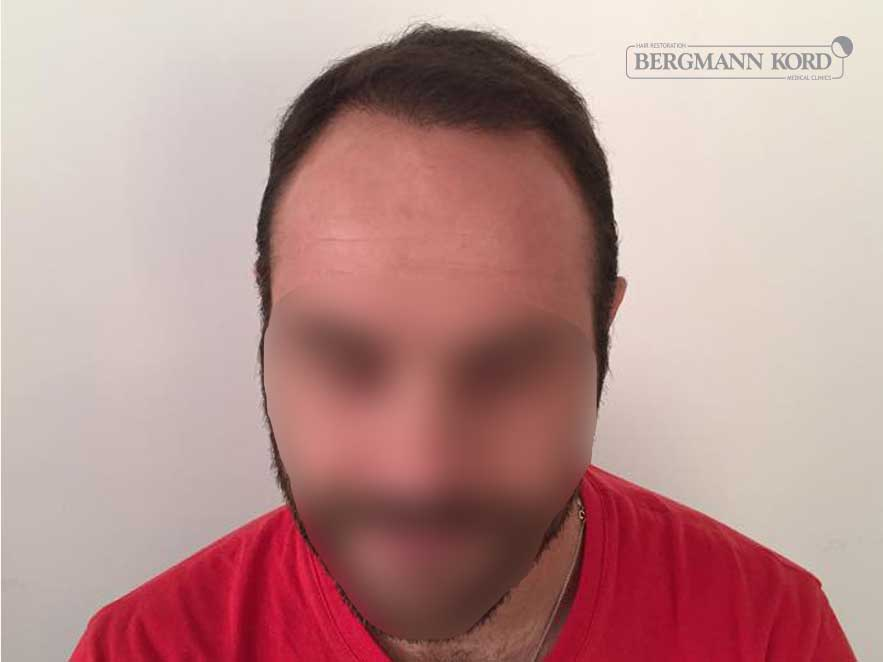 hair-transplantation-bergmann-kord-results-men-51003PG-after-front-001
