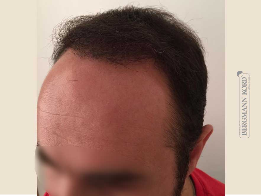 hair-transplantation-bergmann-kord-results-men-51003PG-after-left-001