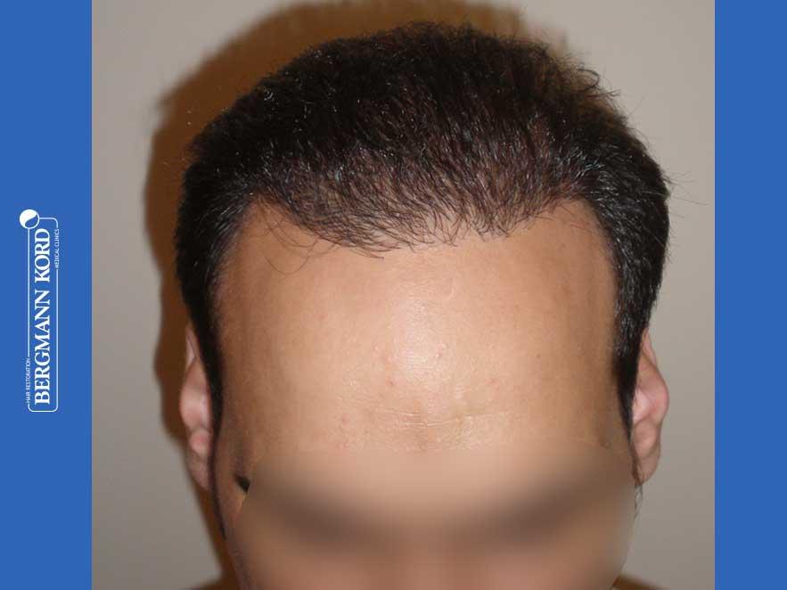 hair-transplantation-bergmann-kord-results-men-51024PG-after-front-001