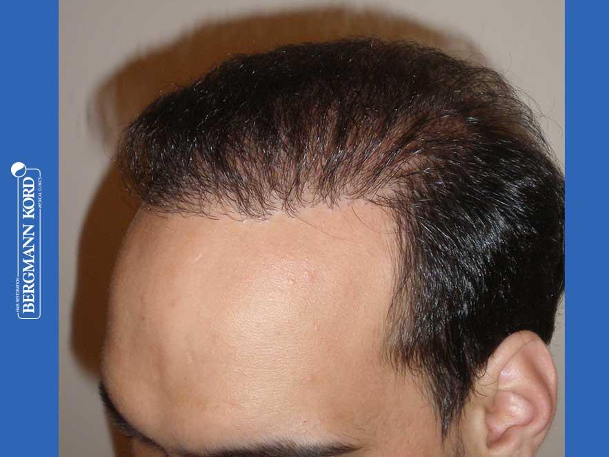 hair-transplantation-bergmann-kord-results-men-51024PG-after-left-001