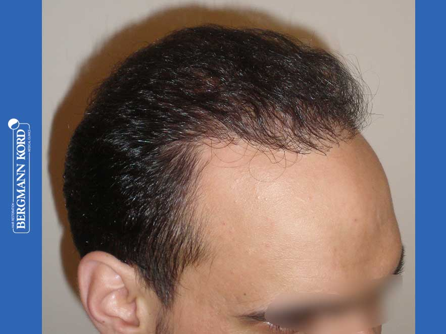 hair-transplantation-bergmann-kord-results-men-51024PG-after-right-001