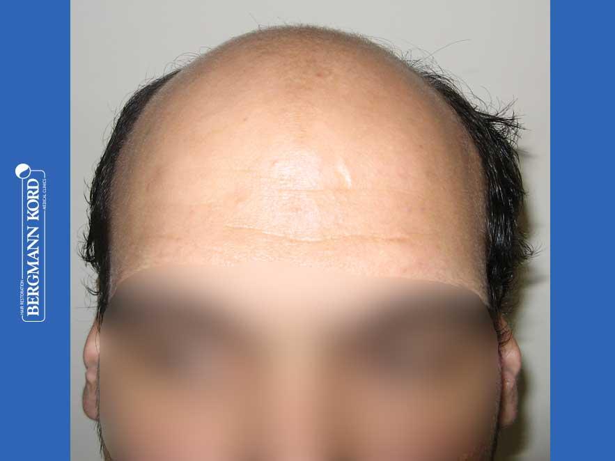 hair-transplantation-bergmann-kord-results-men-51024PG-before-front-001