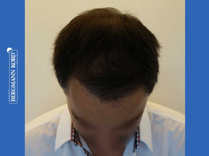 hair-transplantation-bergmann-kord-results-men-52016PG-after-top-001