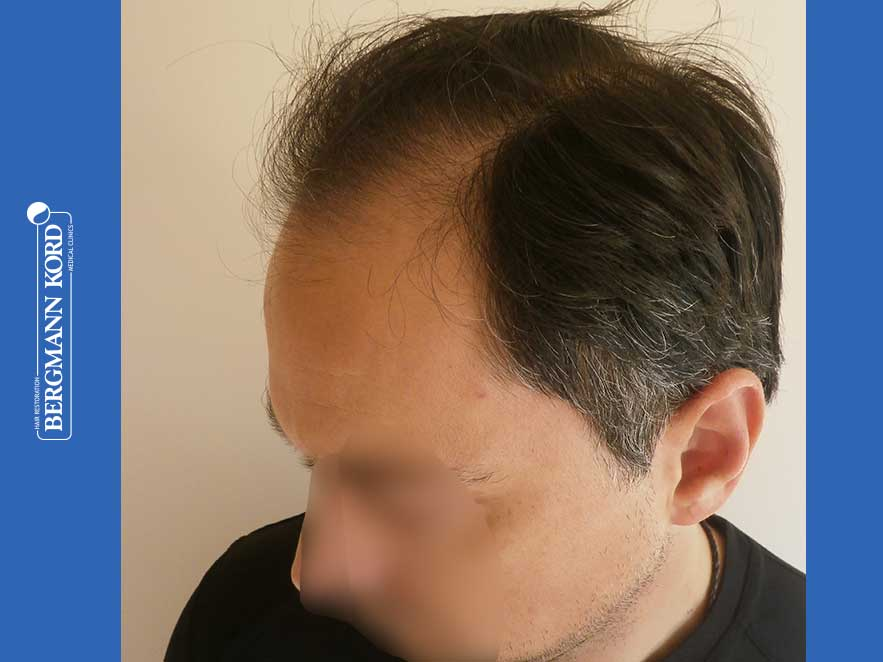 hair-transplantation-bergmann-kord-results-men-52016PG-before-left-001