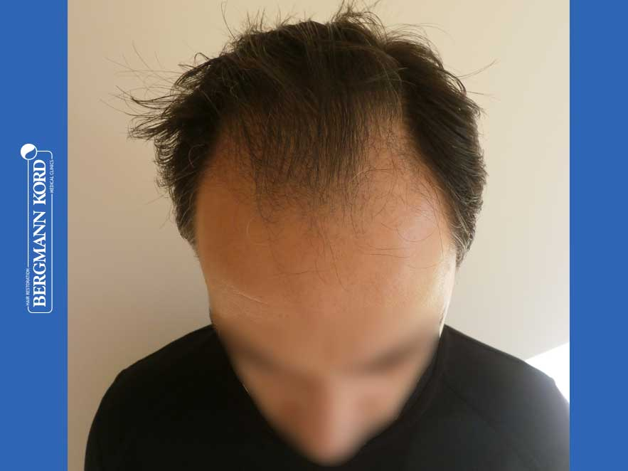 hair-transplantation-bergmann-kord-results-men-52016PG-before-top-001