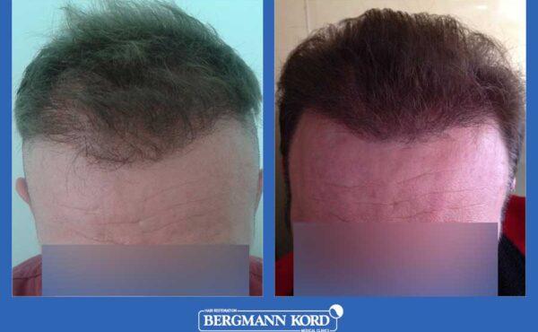 hair-transplantation-bergmann-kord-results-men-52259PG-before-after-001