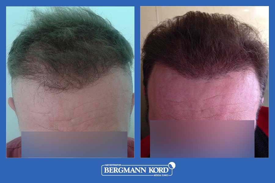 hair-transplantation-bergmann-kord-results-men-52259PG-before-after-001