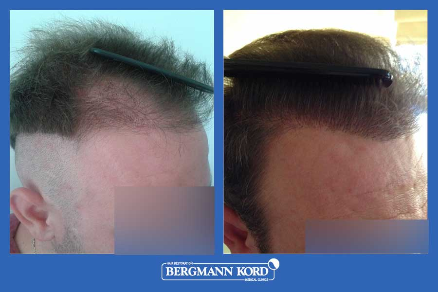 hair-transplantation-bergmann-kord-results-men-52259PG-before-after-002
