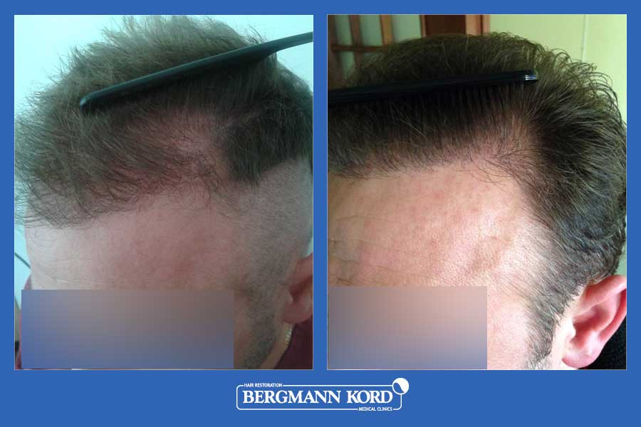 hair-transplantation-bergmann-kord-results-men-52259PG-before-after-003
