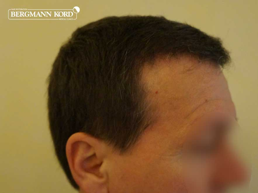 hair-transplantation-bergmann-kord-results-men-53004PG-after-right-001