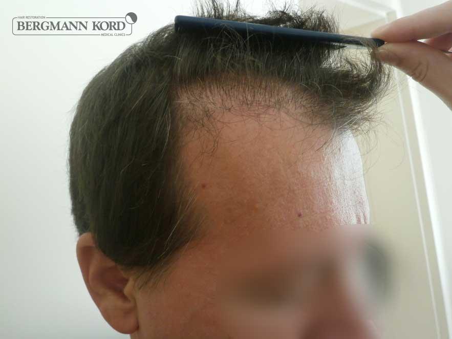 hair-transplantation-bergmann-kord-results-men-53004PG-before-right-001