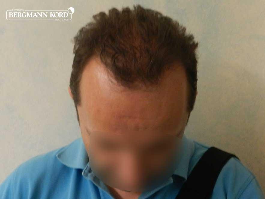 hair-transplantation-bergmann-kord-results-men-53012PG-after-top-001